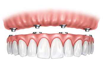 Dental implants with a screw retained denture.